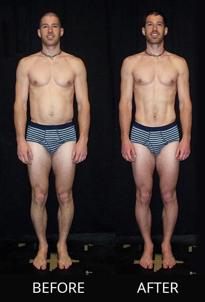 Denver Rolfing before and after front view