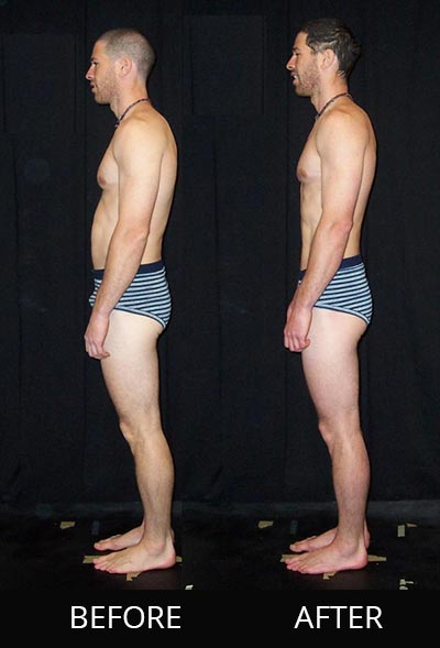 Denver Rolfing before and after side view